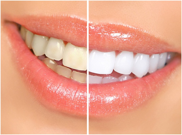 Whiten Your Teeth With The Help Of A Professional Teeth Whitening